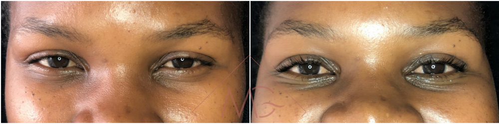 Lash Lift & Tints BEFORE & AFTER done by MG Professional